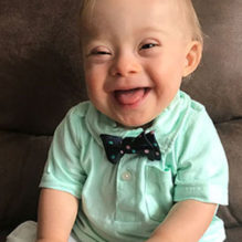 gerber-baby-down-syndrome